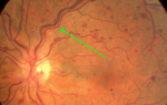 Тромбоз сетчатки глаза можно вылечить