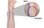 Тромбоз артериовенозной фистулы лечение