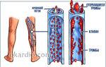 Крупные вены на ногах это тромбоз
