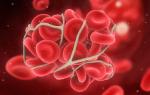 Тромбоз определение виды причины механизмы