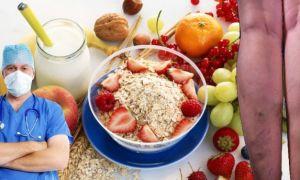 Что едят и не едят при тромбофлебите