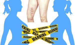 В чем опасность тромбофлебита при беременности