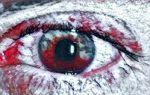Опасно! Тромбоз сетчатки глаза