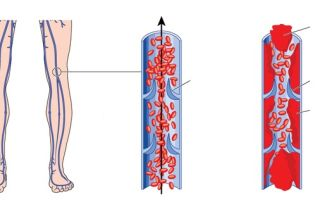 Артериальный тромбоз причины и симптомы