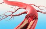 Тромбоз мезентериальных артерий причина