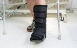 Тромбоз вен ноги после перелома