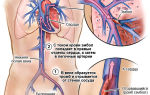 Тромбоз легочной артерии после операции