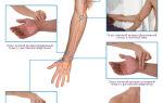 Пониженное артериальное давление и низкий пульс