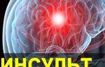Инфаркт тромбоз левой средней мозговой артерии