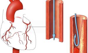 Внимание! Тромбоз сердца – что делать чтобы не оторвался