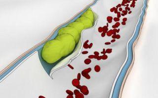 Тромбоз кишечника в пожилом возрасте
