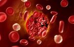 От чего происходит тромбоз глубоких вен