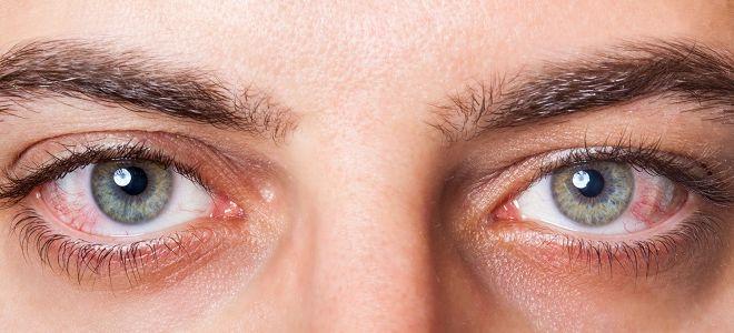 Тромбоз сетчатки глаза лечение укол