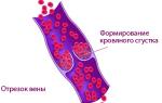 Как вызвать тромбоз у человека