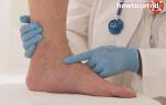 Тромбофлебит ног чем его лечим