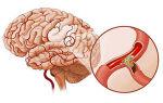 Чем опасен тромбоз головного мозга