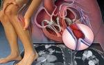 Острый тромбоз нижней полой вены лечение