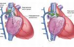 Тромбоз нижней и верхней полой вены