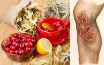 Лечение трофических язв нижних конечностей в домашних условиях. Народные средства лечения трофических язв на ногах