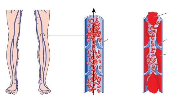 Как выглядит тромбоз вен