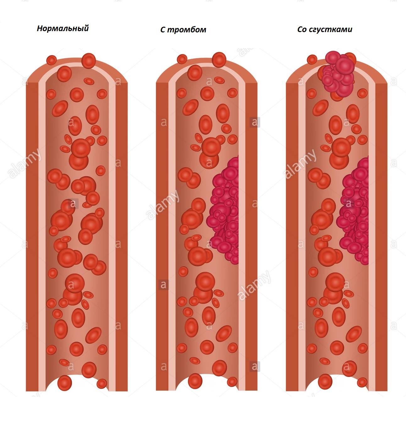 как выглядит нормальная вена и вена с тромбозом
