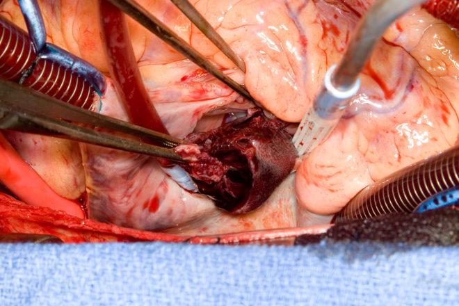 фото операции на удаление сгустка крови в сердце
