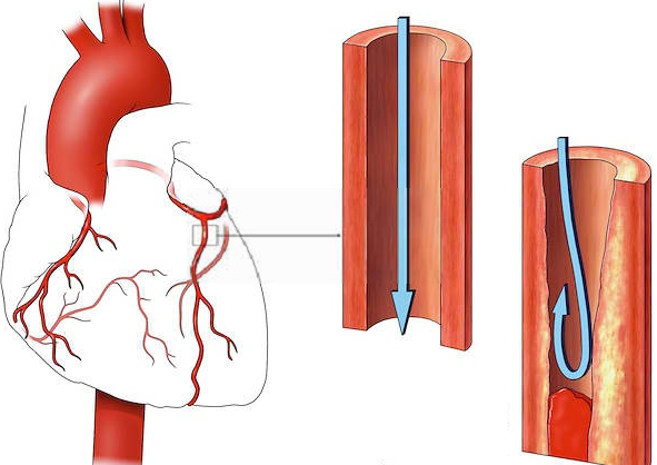 тромб в сердце сравнение с нормальной артерией