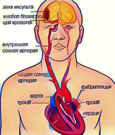 тромб в сердце и мозге