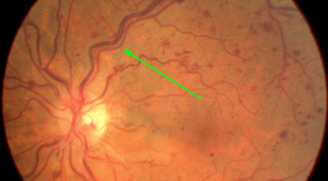 Тромбоз сетчатки глаза код по мкб
